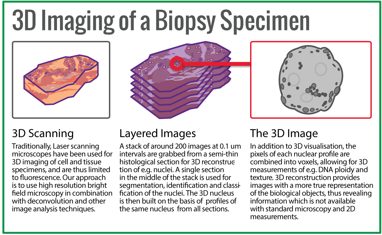 3d imaging of a Biopsy Specimen